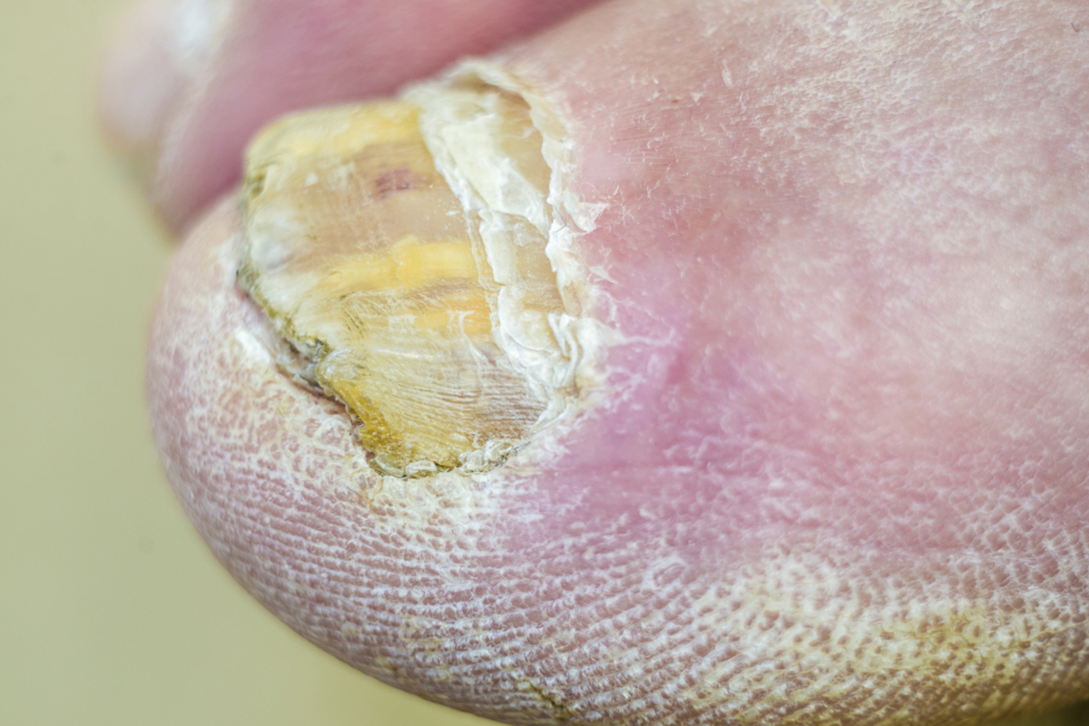 5 Embarrassing Foot Conditions – and What You Can Do About ...