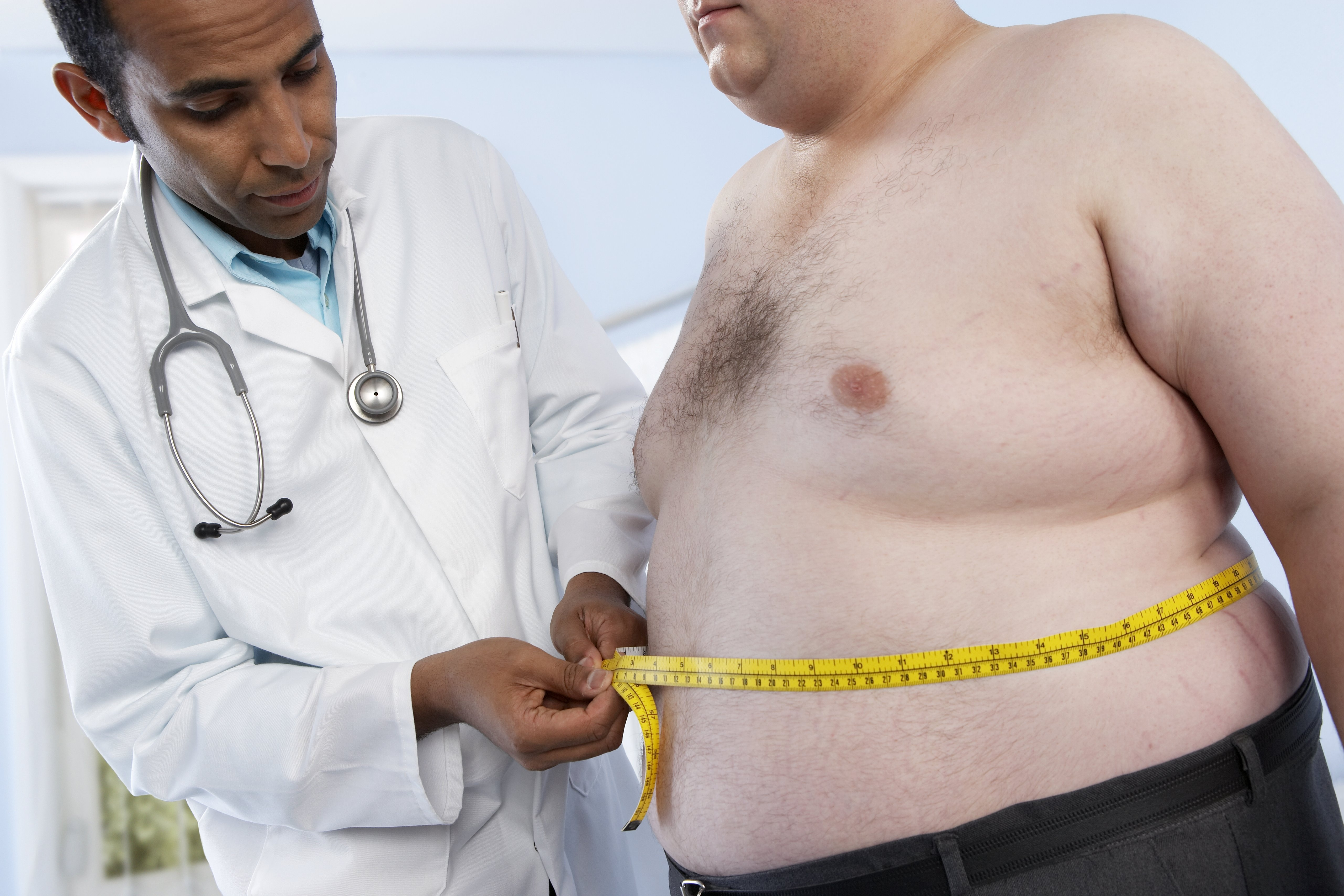 Obese Adults 86