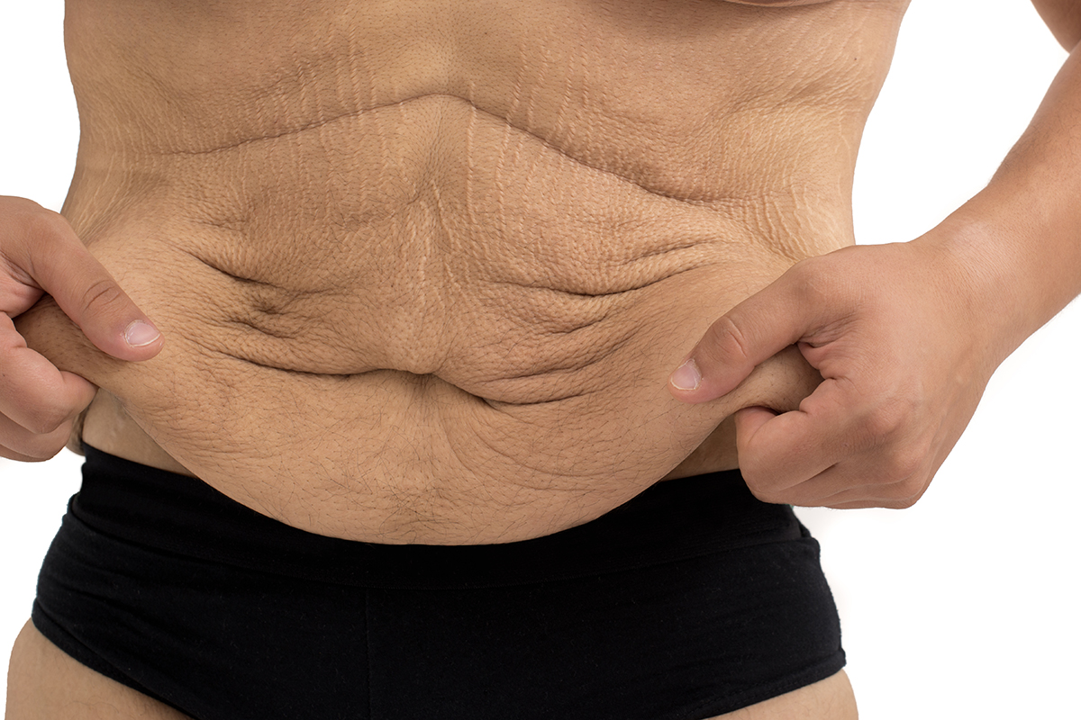 How to Deal With Extra Skin After Major Weight Loss ...