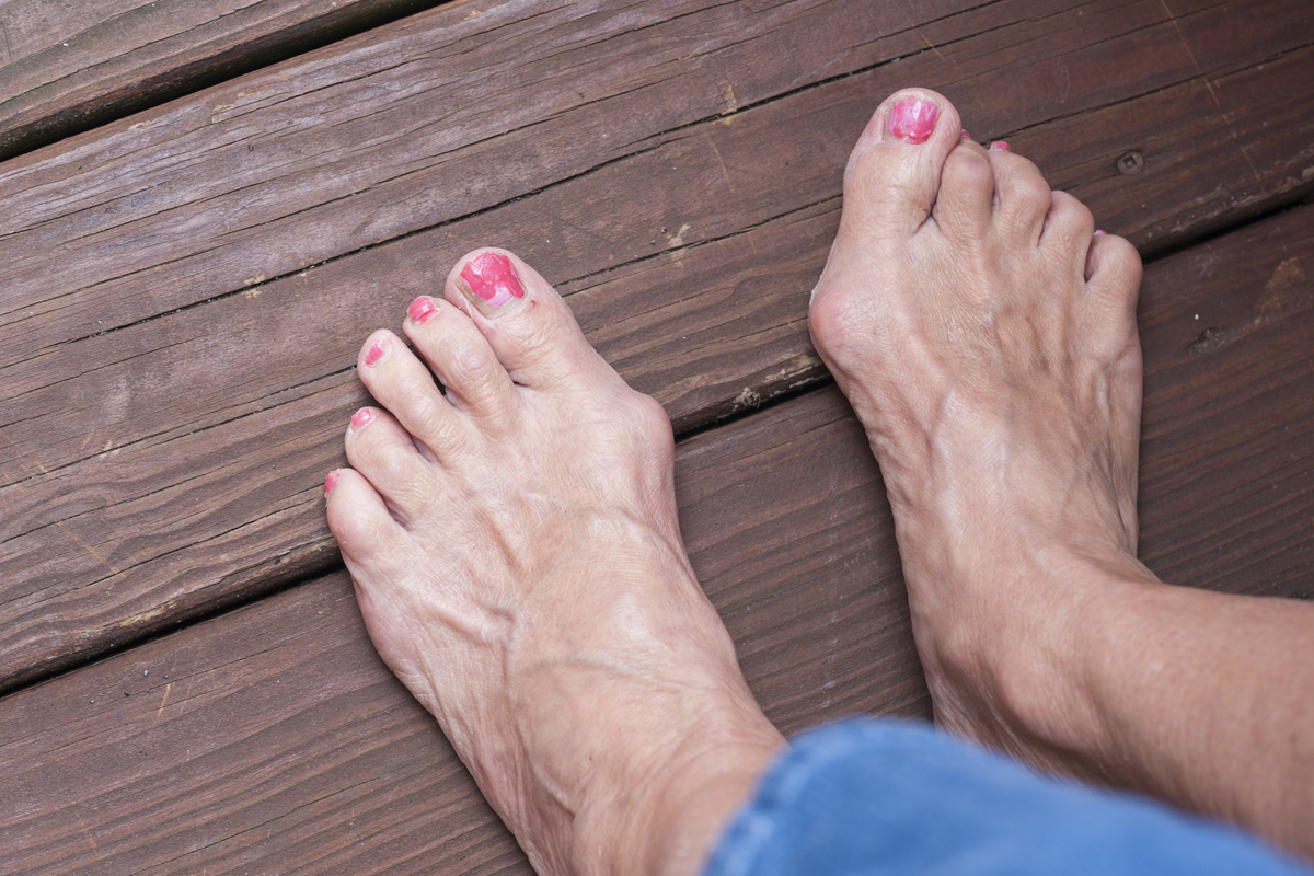 Bunions No Fun For Your Feet For Better Us News